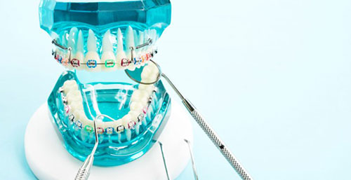 synthetic teeth and with colorful braces