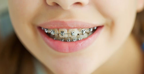 close up of a teen's braces