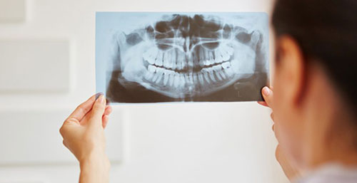 Dentist looking at an x-ray