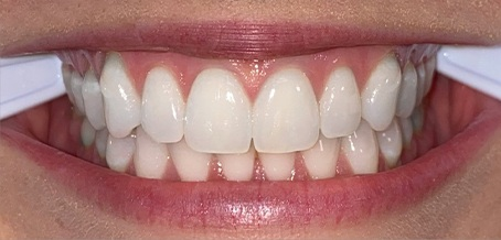 Front teeth example pic