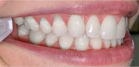 teeth example pic
